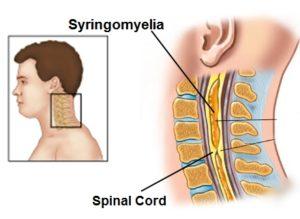 https://obatherbalnusantara.com/syringomyelia-kista-di-sumsum-tulang-belakang/