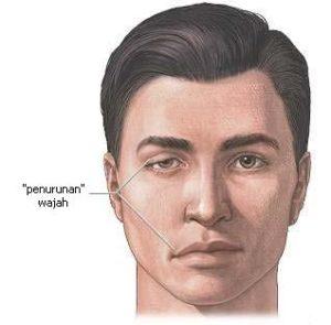 http://obatherbalnusantara.com/bells-palsy-muka-menceng-penyakit-syaraf-yang-gejalanya-mirip-dengan-stroke/
