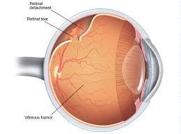 https://obatherbalnusantara.com/jenis-dan-penyebab-ablasio-retina/