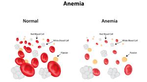 https://obatherbalnusantara.com/Penyebab-gejala-dan-resiko-anemia-yang-berhubungan-dengan-kanker/