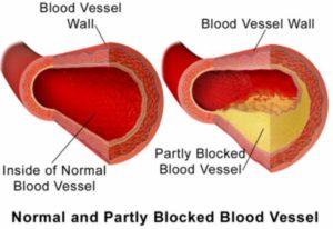 http://obatherbalnusantara.com/penyebab-aterosklerosis-dan-cara-pencegahanya/