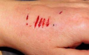 http://obatherbalnusantara.com/manfaat-propolis-untuk-mengobati-luka/