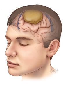 http://obatherbalnusantara.com/mengenal-penyakit-meningioma-gejala-penyebab-dan-cara-mengobatinya/